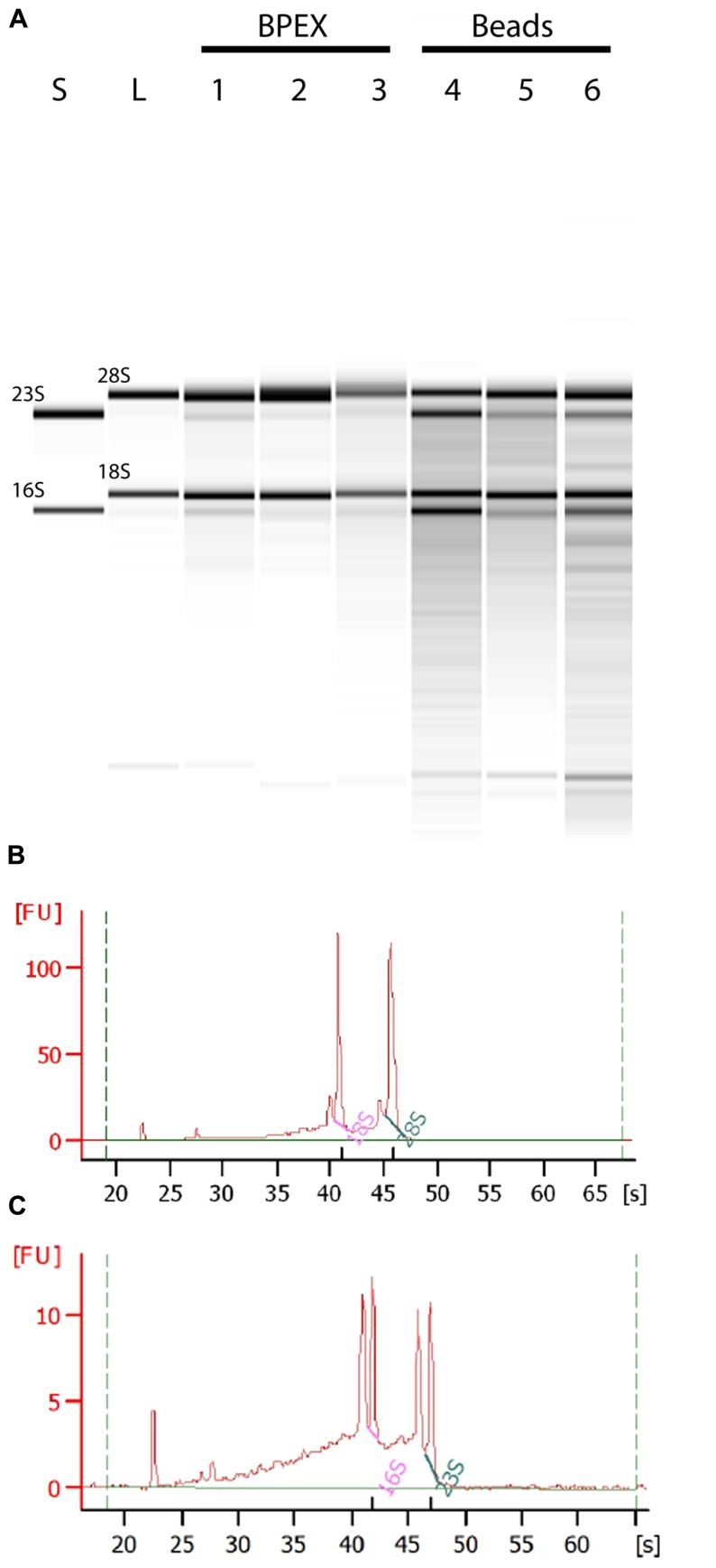 Total RNA from plant root extractions by BPEX and Bead/SDS/phenol methods . Intact plant roots were suspended in 20 ml of bacterial inoculum (OD 600 of 0.2) for 2 h at 18°C. Total RNA was extracted using either the BPEX or the Bead/SDS/phenol method and RNA quality was assessed by spectroscopy on a Bioanalyser 2100 machine (Agilent). (A) A montage of an electropherograph of the total RNA levels following extraction of inoculated plant material. The lanes show RNA from an in vitro culture of E. coli O157:H7 isolate Sakai only (lane S); uninfected lettuce roots (lane L); E. coli O157:H7 Sakai infected lettuce roots (Lane 1, 306 ng μl - 1 ; Lane 4, 119 ng μl - 1 ; Lane 5, 195 ng μl - 1 ); and E. coli O157:H7 Sakai infected spinach roots (Lane 2, 248 ng μl - 1 ; Lane 3, 301 ng μl - 1 ; Lane 6, 141 ng μl - 1 ). Lanes 1, 2, and 3 show extraction using the BPEX method, and Lanes 4, 5, and 6 using the Bead method. The samples were run alongside a commercial RNA transcript ladder (0.2, 0.5, 1.0, 2.0, 4.0, and 6.0 kb, Agilent); the 16S and 23S (bacterial), and 18S and 28S (plant) r RNA bands are indicated. Electropherogram of E. coli O157:H7 Sakai infected lettuce roots extracted with (B) the BPEX method (sample derived from lane 1) or with (C) the novel Bead/SDS/phenol method (sample derived from lane 4). The uninfected spinach control was similar to lettuce (lane L) (not shown).