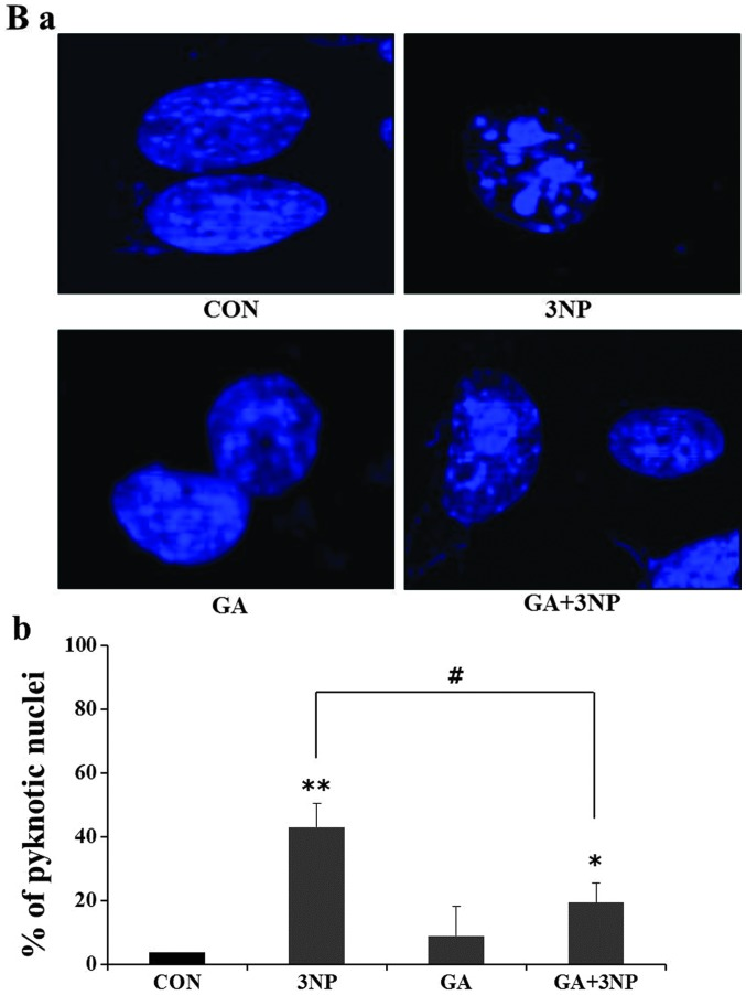 Effects of 3-nitropropionic acid (3NP) and geldanamycin (GA) on apoptosis. Striatal cells were treated with GA, 3NP and GA+3NP. (Aa) After 24 h of treatment, cells were collected and protein extracts prepared from each samples were analyzed by immunoblotting using indicated antibodies. GA suppressed 3NP-induced <t>caspase-3</t> activation and level of cleaved <t>PARP.</t> β-actin was used as a loading control. (Ab and c) Quantitative analysis was obtained from three individual experiments (n=3). The nuclear morphological changes are shown by 3NP-treated striatal cells. (Ba) The abrogation of nuclear damage by GA was measured using DAPI staining and (Bb) quantitative analysis of apoptotic cells. The more apoptotic cells were observed in only 3NP treated striatal cells compared to GA+3NP-treated striatal cells. Apoptotic cells were quantitatively counted using a microscope. In only 3NP-170-treated striatal cells, ~42% of cells showed DNA fragmentation whereas ~21% of cells included fragmentation in GA+3NP-treated striatal cells. Approximately 100 DAPI-positive cells were counted in each experiment. Quantitative analysis was obtained from three individual experiments (n=3). * P