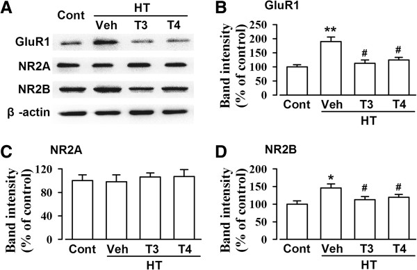 Expression of glutamate receptors. (A) Representative western-blot analysis of GluR1, <t>NR2A,</t> and NR2B subunits in the ACC homogenates. Levels of GluR1 (B) , NR2A (C), and NR2B (D) in saline control, vehicle-, T3-, and T4-treated HT mice. n = 5 in each group. * p