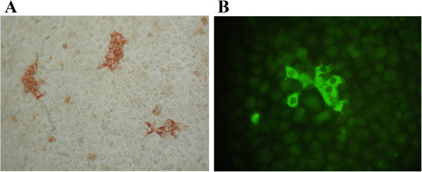 PRRSV-specific <t>IgG</t> detection via immunoperoxidase monolayer assay (IPMA) and immunofluorescence assay (IFA). PRRSV-infected cells were incubated with 1:2 dilutions of oral fluid samples. PRRSV-specific IgG antibodies bound to infected cells were subsequently detected via IPMA (A) , using <t>biotinylated</t> goat-anti-swine IgG antibodies and horseradish peroxidase-conjugated streptavidine, or IFA (B) , using goat-anti-swine IgG antibodies and FITC-conjugated anti-goat antibodies.