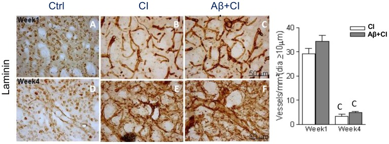 """Histology of cerebral microvessels in control, CI and Aβ+CI groups. Microphotographs showed laminin-stained microvessels in the core of ipsilateral (right) striatum at week 1 (A–C) and week 4 (D–F) post insults. Quantitative analysis of the whole striatal core showed that average density of dilated microvessels (i.e. diameter greater than 10 µm) in CI and Aβ+CI groups was significantly higher at week 1 than those at week 4. As induced injury advanced, at week 4 regular vasculature was almost absent in the Aβ+CI group. Letter """"C"""" indicates significant differences when compared to the control group, p"""