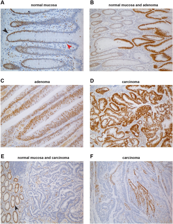 Immunohistochemical staining for DACH1 protein in normal and neoplastic colon. (A) In normal mucosa, DACH1 expression is present in the nuclei of proliferating cells in the lower portion of the epithelial crypts (black arrowhead) and completely absent in the differentiated cells in the upper crypts (red arrowhead). (B) High-level DACH1 expression is seen in rapidly proliferating cells of adenomatous glands taking over normal crypts. Abundant expression is also seen in most cells of a colorectal adenoma (C) and a colorectal carcinoma (D) . In another colorectal cancer (E) , DACH1 expression is absent in neoplastic glands, although proliferating cells in the normal mucosa and in the tumoral stroma are positive. (F) A third colorectal cancer with patchy staining for DACH1.