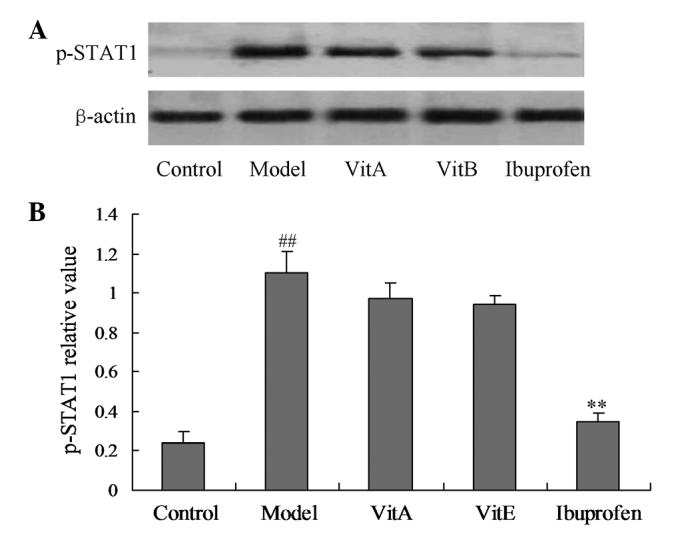Effects of VitA and VitE on the p-STAT1 protein expression levels in CIA model rats. (A) Western blot analysis of p-STAT1 protein levels. (B) Statistical analysis of the p-STAT1 expression levels. The relative quantification of the p-STAT1 protein levels is expressed as a ratio of the target protein to β-actin. Values were normalized with respect to β-actin and expressed as a percentage of the control. Each value represents the mean ± SD, ## P