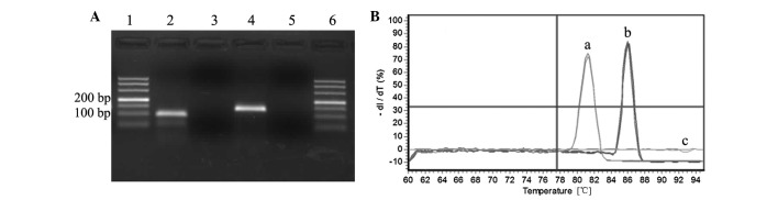 qPCR assay. (A) Gel electrophoresis analysis of the target and reference gene PCR products. Lanes 1 and 6, 500-bp molecular marker; 2, LRIG2; 3, NTC for LRIG2; 4, GAPDH; and 5, NTC for GAPDH. (B) Melting curve analysis of the target and reference gene PCR products. The SYBR Green qPCR reactions of the (a) LRIG2 and (b) GAPDH genes were performed using a normal sample of the complementary <t>DNA</t> <t>(cDNA).</t> Each peak corresponds to a unique PCR product. (c) NTC reactions showed no PCR product. LRIG2, leucine-rich repeats and immunoglobulin-like domains 2; NTC, non-template negative control; qPCR, quantitative polymerase chain reaction; GAPDH, glyceraldehyde-3-phosphate dehydrogenase; −dI/dT, negative first derivative of the melting curves as a function of temperature.
