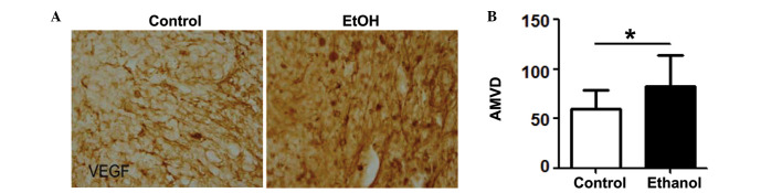 Effect of alcohol exposure on VEGF expression and angiogenesis in mice. (A) E0771 mouse breast cancer cells were implanted in mammary fat pads of C57BL6 mice. The mice were exposed to alcohol in drinking water for two weeks. Mice were sacrificed and mammary tumors were dissected and sectioned for VEGF IHC as described in Materials and methods. (B) Tumor microvessels were identified by CD31 IHC and the AMVD was quantified and expressed as the number of microvessels/mm 2 area. The results are represented as the mean ± SEM of 20–22 animals. * Denotes a statistically significant difference (P