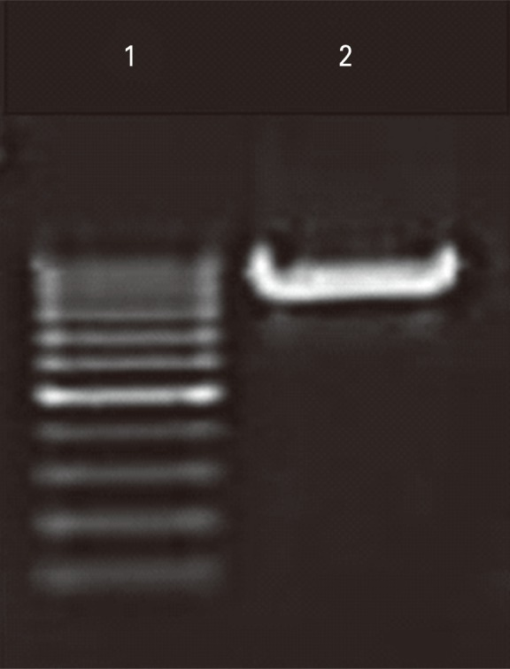 Gel image showing polymerase chain reaction amplification of <t>Myd88</t> gene fragment. Lane 1, GeneRuler 100 bp DNA ladder; lane 2, 891 bp band indicative of Myd88 gene fragment.