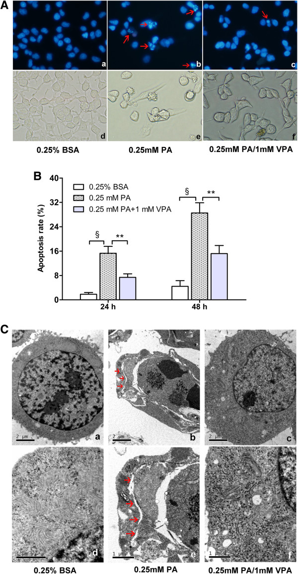 Valproate pretreatment prevents palmitate - induced apoptosis and ER distension. INS-1 cells were pretreated with or without 1 mM VPA for 48 h before challenged with 0.25 mM PA. ( A ) After the treatments for 24 h, apoptosis was assessed by staining cells with Hoechst 33342/PI (a - c) , meanwhile the morphology of INS-1 cells was also captured (d - f) . Apoptosis was characterized by nucleus condensed or fragmented (red arrows) that intensely stained with Hoechst 33342 (blue fluorescence). In each case five to seven microscopic fields were photographed randomly. Scale bars: a-f = 400 × magnification. (B) After the treatments for 24 h or 48 h, the cells were stained with Annexin V and PI, and the percentage of apoptosis was detected by flow cytometry. Data are mean ± SD of three independent experiments. ** P