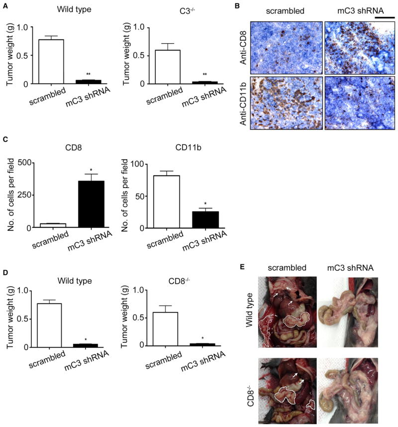 Role of Immunomodulatory Effect of C3 Knockdown on Tumor Growth (A) ID8-VEGF murine ovarian cancer cells stably expressing murine (m) C3 shRNA or control scrambled shRNA were injected into immune-competent C57BL/6 mice (WT and C3 −/− ). Cancer cells with C3 knockdown generated smaller tumors in both WT and C3 −/− mice. **p ≤ 0.0001. (B) Representative immunostaining for CD8 and CD11b in tumors induced by mC3 shRNA-expressing or scrambled shRNA-expressing ID8-VEGF cells in WT mice. Scale bar, 100 μm. (C) The number of cytotoxic T cells (CD8+) and myeloid cells (CD11b+) were determined by counting cells in three high-power fields per tumor nodule per mouse and in five mice per group, and the results are summarized as bar graphs (28 CD8+ cells/HPF in scrambled shRNA-expressing and 358 CD8+/HPF in C3 shRNA-expressing cell-induced tumors; 82 CD11b+ cells/HPF in scrambled shRNA-expressing and average number of 25 CD11b+ cells/HPF in C3 shRNA-expressing cell-induced tumors, n = 15 HPF; *p = 0.001, t test). (D) ID8-VEGF cells stably expressing mC3 shRNA or control scrambled shRNA were injected to CD8 −/− and WT mice. There was no significant difference in tumor size after injection with scrambled shRNA-expressing cancer cells between CD8 −/− and WT mice (0.60 ± 0.23 g versus 0.77 ± 0.17 g, respectively; n = 10 mice/ group; p = 0.19). C3 silencing by mC3 shRNA in cancer cells resulted in 98% reduction in tumor weight in both WT and CD8 −/− mice (*p ≤ 0.001). (E) A representative necropsy in mice showing the presence of tumor nodules on viscera and peritoneal surfaces (surrounded by dashed lines) in WT and CD8 −/− mice injected with ID8-VEGF cells expressing scrambled shRNA and lack of tumor nodules in those injected with mC3 shRNA-expressing cancer cells. Arrows show tumor nodules on the peritoneal surface of diaphragm.