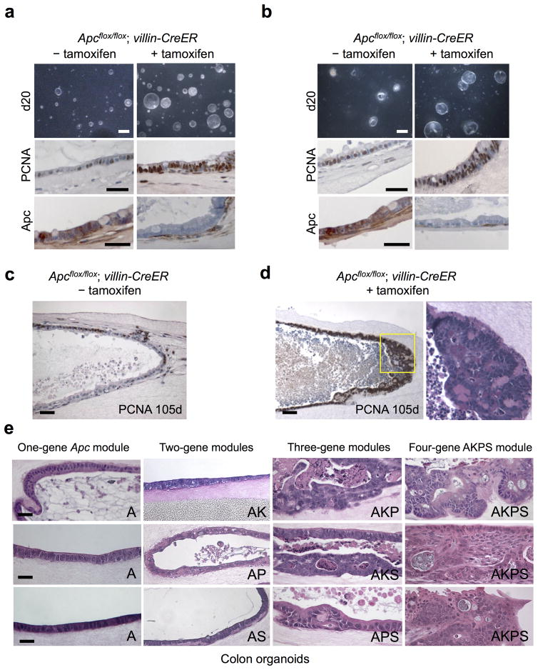 "Systematic evaluation of oncogene modules of increasing complexity in primary colon organoids (a,b) In vitro organoid Apc deletion. Primary small intestine (a) or colon (b) organoids from neonatal Apc flox/flox ; villin-CreER mice were treated with tamoxifen (2 μM, 7 days) followed by analysis at day 20. Tamoxifen-mediated Apc deletion induced overall growth, proliferative index (middle, PCNA) and APC deletion (bottom, APC IHC). Scale bars, top, 5 mm; middle, 50 μm; bottom, 50 μm. (c,d) In situ polyposis within long-term intestinal organoid cultures. Small intestine organoids from neonatal Apc flox/flox ; villin-CreER mice induced without (c) or with (d) tamoxifen followed by culture for 105 days and analysis by PCNA. An in situ tubular adenomatous polyp within the organoid wall in (d) exhibits a polypoid proliferation of PCNA-positive closely spaced tubules lined by enlarged, crowded nuclei. H E staining of the yellow-boxed region is depicted. Scale bars, 50 μm. (e) one to four oncogene CRC modules were created by infection of tamoxifen-treated Apc flox/flox ; villin-CreER adult colon organoids with appropriate combinations of control LMP retrovirus (with GFP cassette) or retroviruses encoding Kras G12D , LMP p53 shRNA/GFP or LMP Smad4 shRNA/GFP followed by H E staining at day 50 post-infection. The 1-gene Apc (""A"") and 2-gene colon modules ( Apc −/− /Kras G12D (AK), Apc −/− /p53 shRNA (AP) or Apc −/− /Smad4 shRNA (AS)) only exhibited minimal dysplasia. High-grade focal dysplasia was exhibited by the 3-gene module Apc −/− /Kras G12D /p53 shRNA (AKP). The four-gene module Apc −/− /Kras G12D /p53 shRNA/ Smad4 shRNA (AKPS) induced adenocarcinoma characterized by atypia, confluent sheets of cells, cribriform growth patterns, luminal necrosis, jagged infiltrating growth patterns and frank invasion. Scale bars, 50 μm."