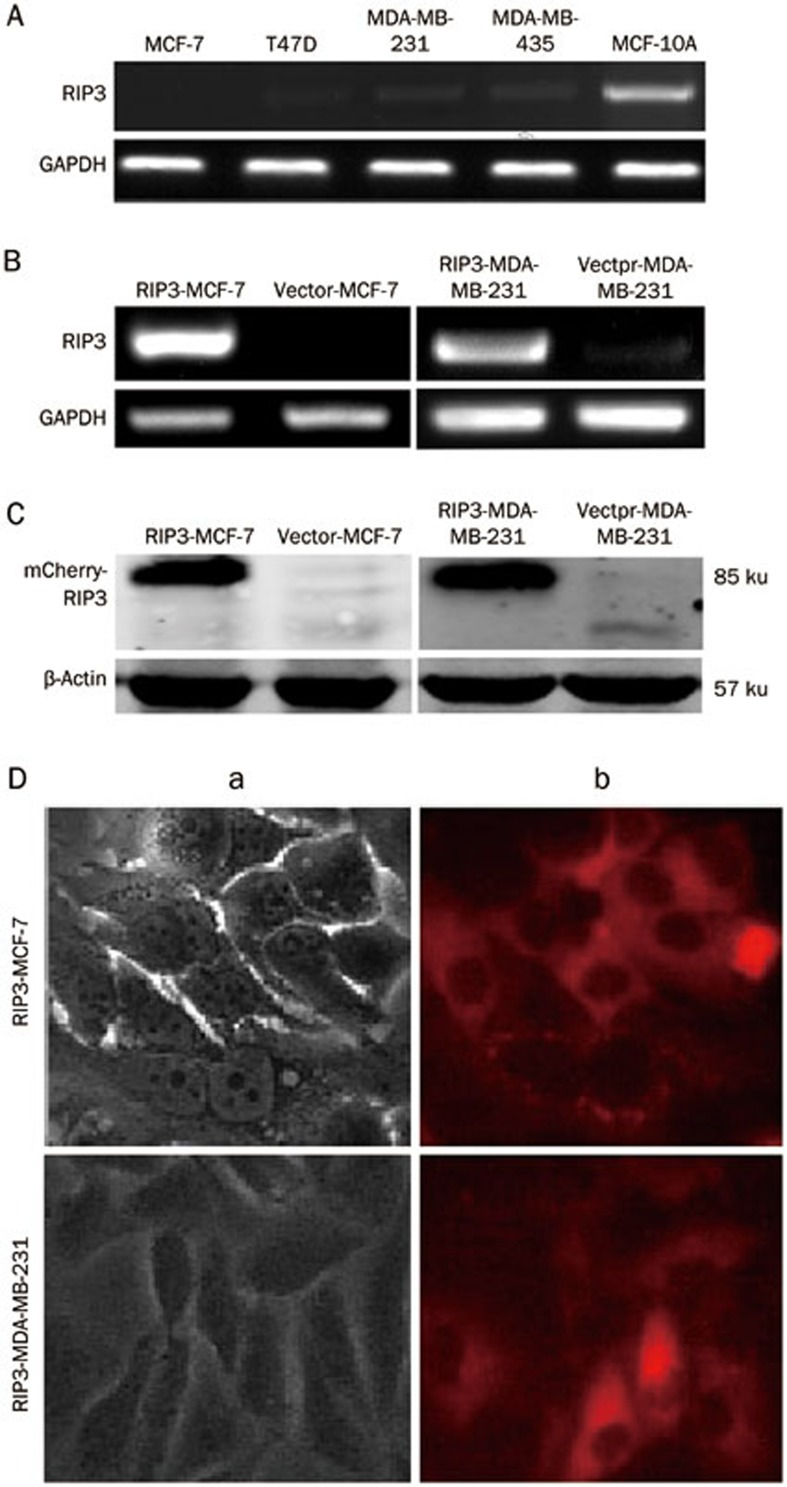 (A) Expression of RIP3 mRNA in different breast cell lines was determined by RT-PCR. Products of RT-PCR were analyzed by agarose gel elecrophoresis. GAPDH was used as internal control. (B) RIP3 mRNA expressions in MCF-7 and MDA-MB-231 cells were detected by RT-PCR. GAPDH was used as internal control. (C) RIP3 protein expressions in MCF-7 and MDA-MB-231 cells were detected by Western blotting. β-Actin was used as loading control. RIP3 mRNA and protein expression considerably increased in RIP3-MCF-7/MDA-MB-231 cells compared with vector-MCF-7/MDA-MB-231 cells. (D) RIP3 expression and cellular distribution were observed by fluorescent microscope. (a) Light microscope (b) fluorescence microscope (×200 magnification).