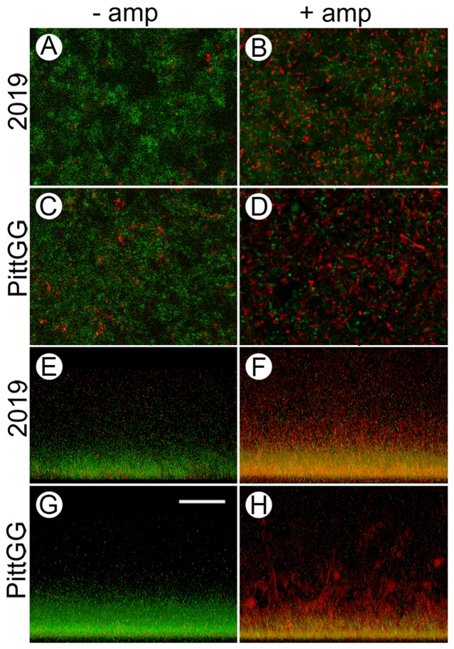 Sub-inhibitory concentrations of ampicillin result in an increase in dead NTHi bacteria in newly formed biofilms. Confocal laser scanning microscopy (cLSM) of biofilms formed by NTHi strains 2019 and PittGG in the absence (− amp) and presence (+ amp) of sub-inhibitory concentrations of ampicillin were stained using the LIVE/DEAD viability assay. 2019 were exposed to 90 ng/mL ampicillin and PittGG to 170 ng/mL ampicillin. Live bacteria were colored green and dead bacteria red. From above, biofilms formed in the absence of ampicillin were mostly green (A C), indicating living (or intact) NTHi bacteria. Clumps of bacteria in both biofilms stained red (A C) indicating the presence of dead, or structurally compromised bacteria. Biofilms formed by 2019 (A) contained fewer aggregates of red bacteria than did PittGG (C) contained more. In the presence of ampicillin (B D) the bacteria in the biofilms were mostly red, indicating a large number of dead bacteria. Green-stained bacteria were still present in both biofilms but appeared more aggregated in the presence of antibiotic (B D). Large amounts of aggregated red bacteria were present in both biofilms, with the aggregates being larger in the PittGG biofilm (Fig. D). Z-stack projections of the biofilms (E–H) showed that all the biofilms were denser at the base of the biofilm, whether exposed to ampicillin or not. In the absence of ampicillin, 2019 (E) and PittGG (G) biofilms comprised green, or intact bacteria. In the presence of ampicillin the biofilm contained mostly structurally compromised bacterial cells, which were colored red or yellow. The 2019 (F) and PittGG (H) biofilms formed in the presence of ampicillin were higher than the comparable biofilms formed without exposure to ampicillin (E G). All images; scale bar (G) = 20 µm.