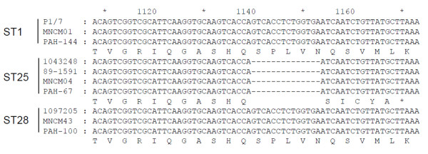 Comparative analysis of the ssnA gene according to STs. Nucleic acid and predicted amino acid sequences of ssnA gene (from position 1108 to 1173) of S. suis belonging to ST1, ST25, and ST28 were compared in order to identify the origin of the loss of DNase activity in ST25.