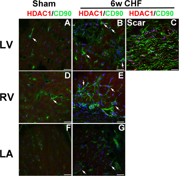 HDAC1 is co-localized with cardiac fibroblast in the infarcted and non-infarcted myocardium in CHF. Coronal (LA) and axial (LV, RV) sections of sham and 6w CHF hearts were stained for HDAC1 (A-G) and fibroblast marker CD90. DAPI (Blue) is used to stain nuclei. CD90 and HDAC1 staining were co-localized in remote LV, RV, and LA and infarcted myocardium. White arrows indicate co-localization of CD90+ cells with HDAC1. Scale bars: 100 μm. CHF, congestive heart failure; LA, left atrium; HDAC, Histone Deacetylase; LV, left ventricle; RV, right ventricle.
