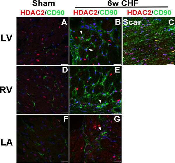 HDAC2 is co-localized with cardiac fibroblast in the infarcted and non-infarcted myocardium in CHF. Coronal (LA) and axial (LV, RV) sections of sham and 6w CHF hearts were stained for HDAC2 (A-G) and fibroblast marker <t>CD90.</t> DAPI (Blue) is used to stain nuclei. CD90 and HDAC2 staining were co-localized in remote LV, RV, and LA and infarcted myocardium. White arrows indicate co-localization of CD90+ cells with HDAC2. Scale bars: 100 μm. CHF, congestive heart failure; HDAC, Histone Deacetylase; LA, left atrium; LV, left ventricle; RV, right ventricle.