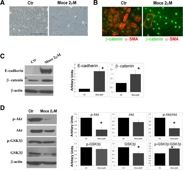 HDAC inhibition induced MET-like process in cardiac fibroblasts. Atrial CD90+ cells were treated with Mocetinostat for 7 days. (A) Transmitted light images demonstrate changes in cell morphology upon treatment with Mocetinostat. Scale bar: 100 μm. (B) Cells were labeled with antibodies to α-SMA (red) and β-catenin (green). DAPI (Blue) is used to stain nuclei. Scale bar: 50 μM. (C) CD90+ cells treated with Mocetinostat were lysed and western blot analysis was performed against E-cadherin and β-catenin. Graphs show the density analysis to corresponding to specific bands normalized to β-actin. (D) Western blot analysis for Akt and GSK3β signaling. Error bars indicate S.E. (n = 4) P