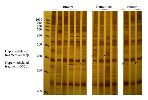 Methylation fingerprints of NPC tumors and nontumor nasopharyngeal tissues using primer MLG2 in the arbitrarily primed-PCR reactions. Bands that appeared to be differentially methylated are indicated by arrows. L: 100 bp DNA ladder.
