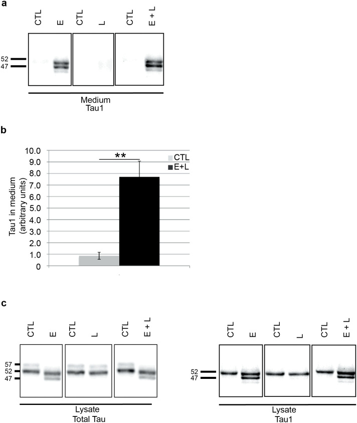 Significant increased secretion of dephosphorylated tau by EBSS and E + L treatments. (a) In the culture medium of control neurons (CTL) and leupeptin treated neurons (L), only one tau-positive band at 52 kDa was detected with the Tau-1 antibody. In the medium of EBSS (E) and E + L treated neurons, the bands at 47 and 52 kDa but not the one at 57 kDa were detected with this antibody (n = 6). (b) Quantification by densitometry of tau dephosphorylated at the Tau-1 antibody epitope in culture medium of control and E + L treated neurons (n = 11). The intensities of the bands were expressed in arbitrary units. Values represent mean ± s.e.m.; **p