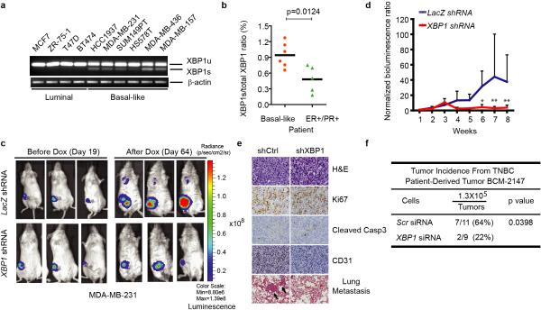 XBP1 silencing blocks TNBC cell growth and invasiveness a-b, RT-PCR analysis of XBP1 splicing in luminal and basal-like cell lines ( a ) or primary tissues from 6 TNBC patients and 5 ER/PR+ patients ( b ). XBP1u: unspliced XBP1, XBP1s: spliced XBP1. β-actin was used as loading control. c, Representative bioluminescent images of orthotopic tumors formed by MDA-MB-231 cells as in ( Extended Data 1d ). Bioluminescent images were obtained 5 days after transplantation and serially after mice were begun on chow containing doxycycline (day 19) for 8 weeks. Pictures shown are the day19 image (Before Dox) and day 64 image (After Dox). d, Quantification of imaging studies as in ( c ). Data are shown as mean ± SD of biological replicates (n=8). *p