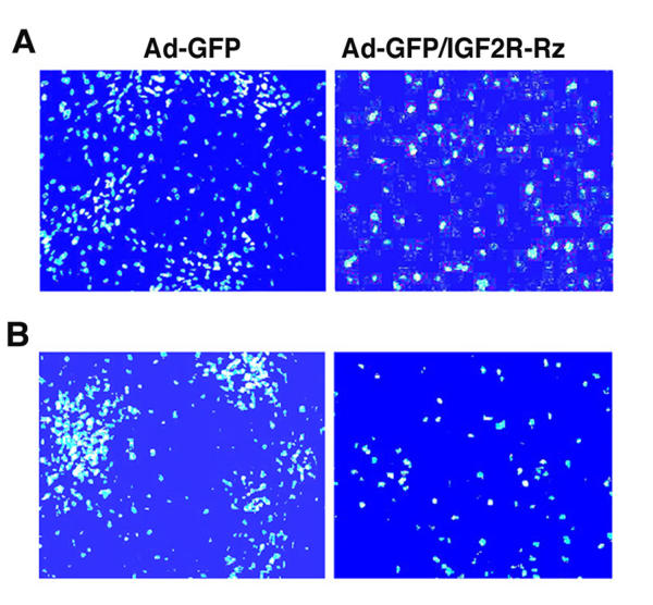 Effects of the IGF2R ribozyme on the apoptosis induced by hypoxia and TNF treatment in cardiac myocytes. Cells were infected with Ad-GFP (control) or Ad-GFP/IGF2R-Rz. 72 hours post infection, cells were challenged with either hypoxia ( A ) or TNF ( B ) for one day and then cell death was examined using a fluorescence microscope. Cells were stained with Hoechst dye for nuclei and observed under 480 nm blue-fluorescent light. The bright blue spots are the nuclei of apoptotic cells.