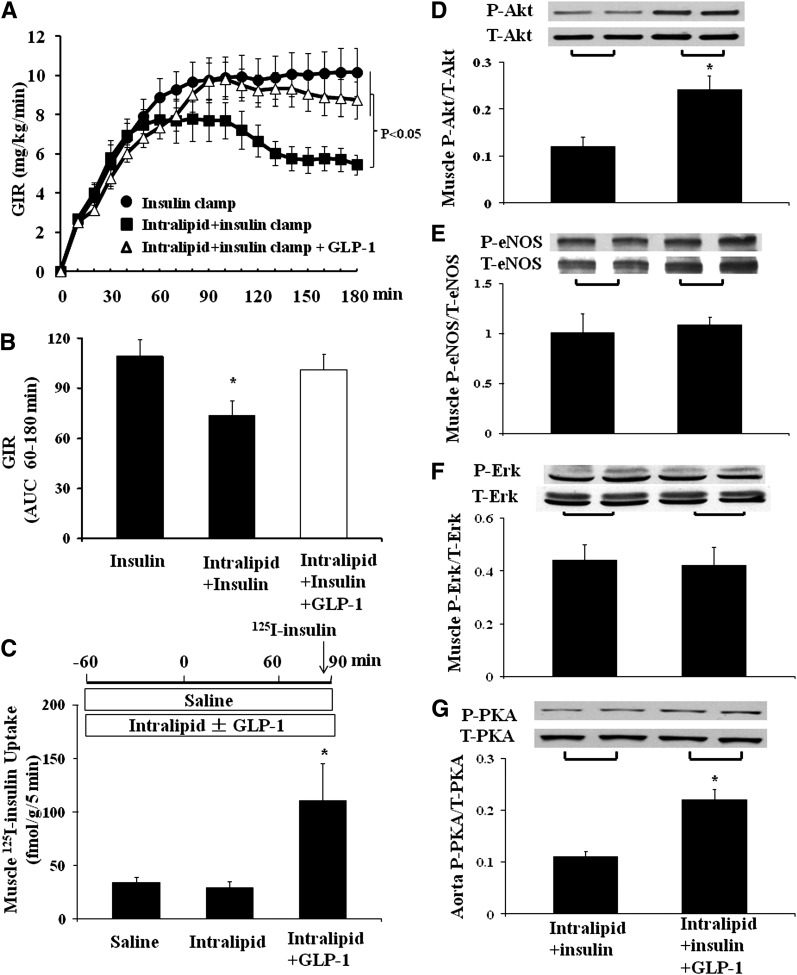 <t>GLP-1</t> restores muscle metabolic insulin sensitivity during lipid infusion. Each rat received a systemic infusion of either saline or lipid for 240 min with a euglycemic insulin clamp (3 mU/kg/min) superimposed in the last 3 h and either saline or GLP-1 (30 pmol/kg/min) for the last 2 h. A : Time course of GIR ( n = 10–15/group). B : GIR AUC from 60–180 min; compared with insulin alone, * P