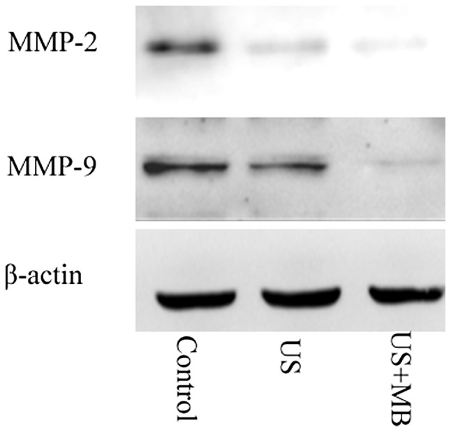 Expression of <t>MMP-2</t> and MMP-9 protein following treatment. MMP, matrix metalloproteinase; US, ultrasound group; US + MB, ultrasound in combination with microbubbles group.