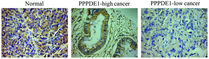 Expression analysis of PPPDE1 in pancreatic ductal adenocarcinoma and normal tissues. The expression of PPPDE1 was markedly decreased in cancer tissues compared with that in normal tissues, showing the lowest expression in poorly differentiated pancreatic cancer. PPPDE1, PPPDE peptidase domain-containing protein 1; PPPDE1-high cancer, cancer tissue with a PPPDE1 staining score of > 3; PPPDE1-low cancer, cancer tissue with a PPPDE1 staining score of ≤3 (stain, diaminobenzidine; magnification, ×200).