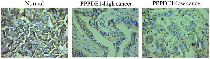 Expression analysis of plakoglobin in pancreatic ductal adenocarcinoma and normal tissues. Plakoglobin expression was highest in normal tissues compared with that in cancer tissues, and was mainly distributed in the membrane and cytoplasm border of cells. A greater proportion of cells exhibited low membrane plakoglobin expression in PPPDE1-low cancer compared with that in PPPDE1-high cancer. However, cytoplasmic staining of plakoglobin remained evident in PPPDE1-low cancer, although its total abundance was markedly decreased compared with that of normal cells. PPPDE1, PPPDE peptidase domain-containing protein 1; PPPDE1-high cancer, cancer tissue with a PPPDE1 staining score of > 3; PPPDE1-low cancer, cancer tissue with a PPPDE1 staining score of ≤3 (stain, diaminobenzidine; magnification, ×200).