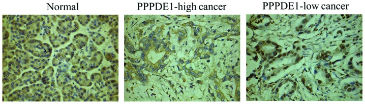 Expression analysis of β-catenin in pancreatic ductal adenocarcinoma and normal tissues. β-catenin was mainly distributed along the cytoplasm border in normal tissues. In PPPDE1-low cancer, β-catenin was particularly prone to appear in the nucleus. However, β-catenin was rarely found to invade the nucleus in PPPDE1-high cancer. PPPDE1, PPPDE peptidase domain-containing protein 1; PPPDE1-high cancer, cancer tissue with a PPPDE1 staining score of > 3; PPPDE1-low cancer, cancer tissue with a PPPDE1 staining score of ≤3 (stain, <t>diaminobenzidine;</t> magnification, ×200).