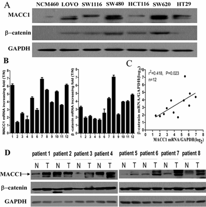 MACC1 protein expression in CRC cell lines (LOVO, SW1116, SW480, HCT116, SW620, and HT29) and normal colonic mucosa epithelial cell (NCM460) by western blot analysis (A); MACC1 and β-catenin mRNA expression in 12 pairs of fresh CRC and adjacent non-tumour colorectal mucosa (ANM) tissues by real-time PCR analysis (B); Significant positive correlation between MACC1 and β-catenin mRNA expression in such 12 pairs of fresh CRC and ANM tissues (C); MACC1 and β-catenin protein expression in 8 pairs of fresh CRC and ANM tissues by western blot analysis (D).