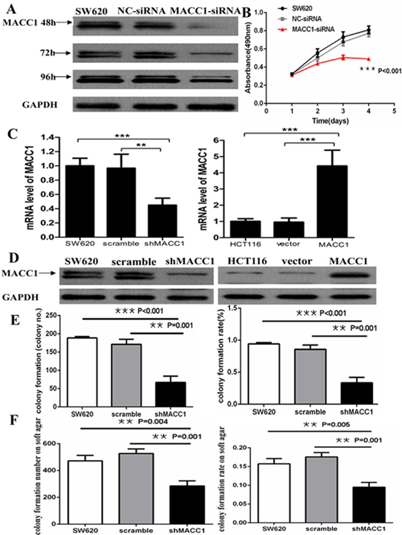 MACC1 protein expression reduced in SW620 cells transfected with MACC1-siRNA at 48, 72, and 96 hours. GAPDH was used as loading control (A); MACC1 knockdown dramatically suppressed cell proliferation of SW620 at 48, 72, and 96 hours compared with the scramble siRNA(NC-siRNA) and untreated SW620 group by MTT analysis, respectively (B); MACC1 mRNA and protein expression was suppressed in SW620 cells (left) stably transfected shMACC1 compared with the scramble and untreated control groups by real-time PCR and western blot analysis, respectively. MACC1 mRNA and protein expression was elevated in HCT116 cells (right) stably transfected with MACC1 expression plasmid compared with empty vector and untreated control groups, respectively. **P