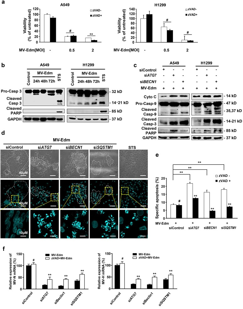Autophagy protects NSCLCs from apoptosis leading to enhanced viral replication (a) A549 and H1299 cells were infected with MV-Edm at a MOI of 0.5 or 2 in the absence or presence of a pan-caspase inhibitor z-VAD-fmk (80μM) for 72 h. Cell viability was quantified by trypan-blue exclusion. Means + SD of triplicates are shown. Similar results were obtained in three independent experiments. (b) A549 and H1299 cells were infected with MV-Edm at a MOI of 0.5 for 24, 48 and 72 h. Cell lysates were harvested for Western blot. Cell lysates from untreated and staurosporin (STS) treated cells were used as negative and positive controls, respectively. Representative blots from two independent experiments are shown. (c) Cytoplasmic cytochrome, cleaved caspase -9, -3 and PARP were evaluated by Western blotting cell lysates harvested from A549 and H1299 cells transfected with siRNAs targeting ATG7, BECN1 or non-specific control siRNA followed by MV-Edm infection at a MOI of 0.5 for 48 h. A representative result from two independent experiments is shown. (d) A549 cells were transfected with siRNA targeting ATG7, BECN1, SQSTM1, or with non-targeting control siRNA for 24 h followed by infection with MV-Edm (MOI = 0.5) for another 48 h. Cells were stained by DAPI before subjected to fluorescent confocal microscopy for evaluation of fragmented nuclei (blue spots). Cells treated with staurosporin (STS, 500 nM) for 12 h were used as a positive control. Scale bars represent 40 μm (upper two panels) and 10 μm (lower panel). Dashed white lines highlight multinucleated syncytia. (e) A549 cells were transfected with siRNA targeting ATG7, BECN1, SQSTM1, or with non-targeting control siRNA for 24 h followed by infection with MV-Edm (MOI = 0.5) in the presence or absence of zVAD (80 μM) for another 48 h. Cells were harvested and the specific apoptosis was analyzed by determining hypodiploid nuclei by FACS. Means + SD of triplicates are shown. Similar results were obtained in three independent experiments. (f) A549 cells were transfected with siRNAs targeting ATG7, BECN1, SQSTM1 or non-specific control siRNA for 24 h followed by infection with MV-Edm (MOI = 0.5) in the absence or presence of zVAD (80 μM) for another 48 h. Then the expression of N- and H-viral structural genes was quantified by qRT-PCR. Means + SD of triplicates are shown. Similar results were obtained in three independent experiments. # p  >  0.05, * p