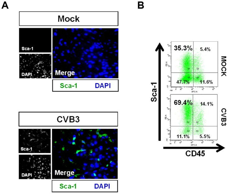 Acute CVB3 infection in juvenile mice induced an increase in myocardial Sca-1 expression. Three day-old mice were infected with eGFP-CVB3 (10 5 pfu IP) or mock-infected, and hearts were isolated at 2 days PI. Paraffin-embedded sections of heart tissue were deparaffinized and stained using antibodies against Sca-1. Alternatively, hearts were mechanically dissociated and cells were fixed in 10% formalin in PBS for FACS analysis (A) An increase in Sca-1 + cells (green) was observed in the heart following infection. (B) FACS analysis confirmed an elevation of Sca-1 + cells in the heart following infection. Primarily resident Sca-1 + , but also blood-derived (CD45 + ) Sca-1 + cells were shown to increase in number in the heart following infection. Representative flow cytometric results for three infected or mock-infected mice are shown.