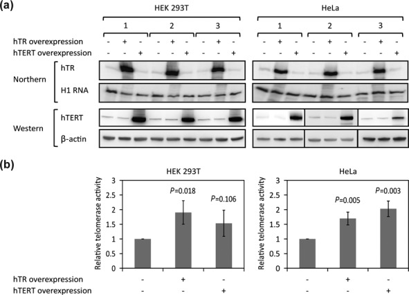 Overexpression of either hTR or hTERT increases total telomerase activity in living cells. ( a ) hTR or hTERT overexpression in HEK 293T and HeLa cells was quantified by northern or western blot, respectively, with H1 RNA or β-actin as loading controls. ( b ) Quantification of telomerase activity as measured by direct telomerase assay using lysates from HEK 293T or HeLa cells untransfected or transfected with either hTR or hTERT expression vectors (error bars: SD, n = 3).