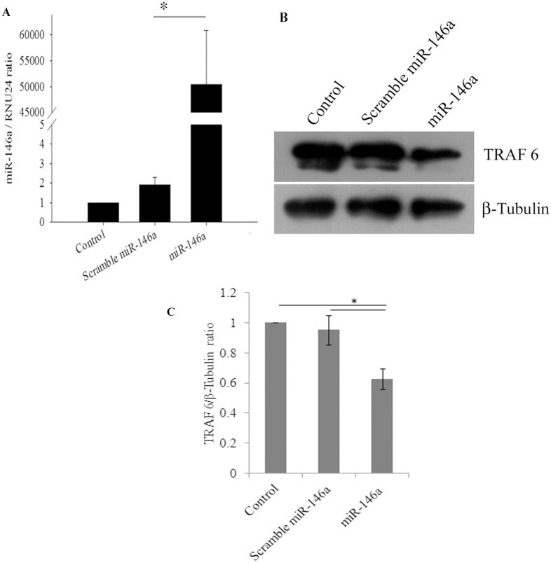 miR-146a overexpression decreases TRAF6 protein expression levels in primary human synovial fibroblasts. Overexpression of miR-146a suppresses protein expression levels of TRAF6. ( A ) miR-146a expression levels were determined by qRT-PCR with TaqMan primers and probes specific to miR-146a. Scramble and miR-146a transfected primary human synovial fibroblasts were harvested 48 hours post transfection and fold change of miR-146a in overexpressed cells were significantly higher with respect to scrambled miR-146a (*p