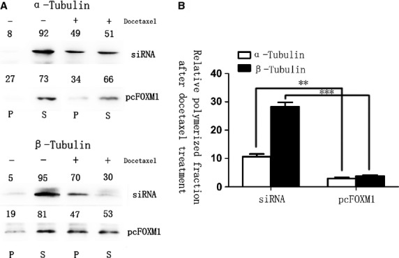 Forkhead box protein M1 (FOXM1) alters the microtubule dynamics in preventing docetaxel-induced apoptosis. Polymerized and soluble tubulin fractions from docetaxel untreated and treated FOXM1-siRNA and pcDNA3, 1-FOXM1–transfected cell lines were generated by centrifugation. Western blot was used to assay α-tubulin and β-tubulin ratios in polymerized and soluble fractions. Relative percentages are shown above western blot (Left). The soluble-to-polymerized microtubule fractions after docetaxel treatment were significantly inhibited in FOXM1-overexpressed group, analysed by t -test both for α-tubulin and for β-tubulin (Right). ** P ≤ 0.01; *** P ≤ 0.001 significant.