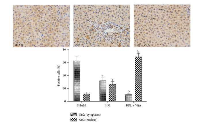 Immunohistochemical staining of liver Nrf2 expression (original magnification: ×400; arrows indicate nucleus-positive cells). More Nrf2 was concentrated in the nuclei of the BDL group than in the SHAM group, and this concentration morphology was more apparent after treatment with vitamin A.