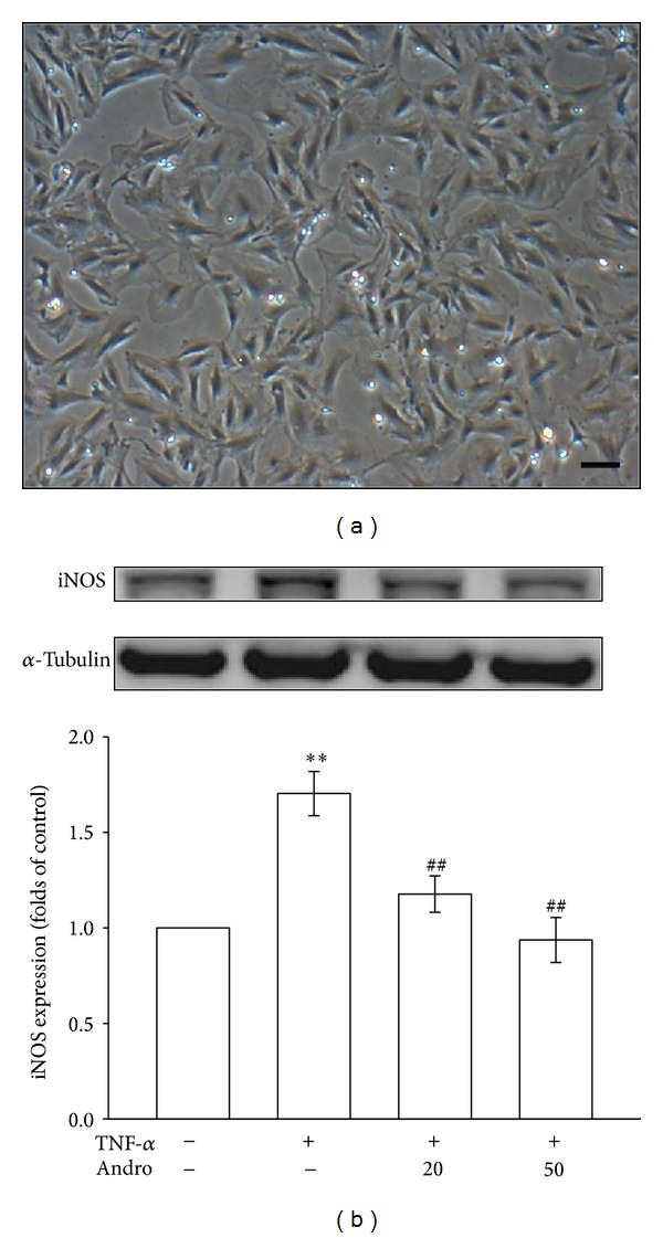 Effects of andrographolide on iNOS expression in TNF- α -stimulated VSMCs. (a) Photomicrograph showing the primary cultured rat aortic VSMCs (magnification ×100). (b) The VSMCs were treated with PBS (resting group) or pretreated with andrographolide (20 and 50 μ M) or an equal volume of DMSO (solvent control) for 20 min, and TNF- α (10 ng/mL) was subsequently added for 24 h. The iNOS protein level was evaluated as described in Section 2 .** P