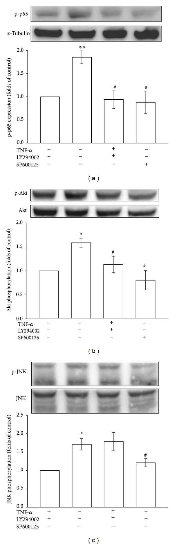 Regulatory effects of various signal inhibitors on p65 activation and Akt and JNK phosphorylation in TNF- α -stimulated VSMCs. The VSMCs were treated with PBS (resting group) or pretreated with LY294002 (10 μ M), SP600125 (10 μ M), or an equal volume of DMSO (solvent control) for 20 min, and TNF- α (10 ng/mL) was subsequently added for 10 min ((b) and (c)) or 30 min (a). (a) p65 phosphorylation, (b) Akt phosphorylation, and (c) JNK phosphorylation were evaluated as described in Section 2 .* P