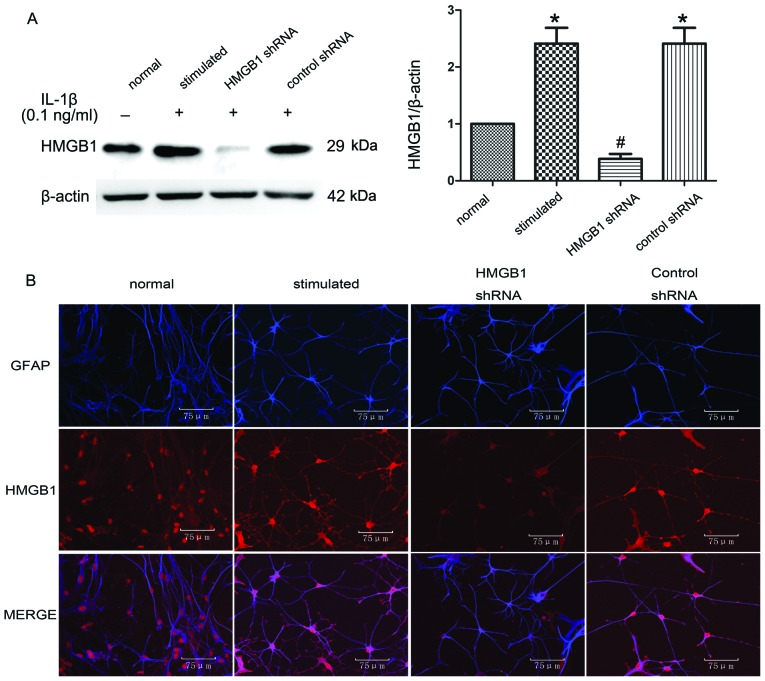 (A) Western blot analysis and (B) double-immunofluorescence labeling of HMGB1 expression in IL-1β-stimulated astrocytes. (A) HMGB1 protein expression was upregulated in IL-1β-stimulated astrocytes. HMGB1 shRNA specifically suppressed HMGB1 protein expression in IL-1β-stimulated astrocytes, as a control shRNA had no effect on HMGB1 protein expression in IL-1β-stimulated astrocytes. * P