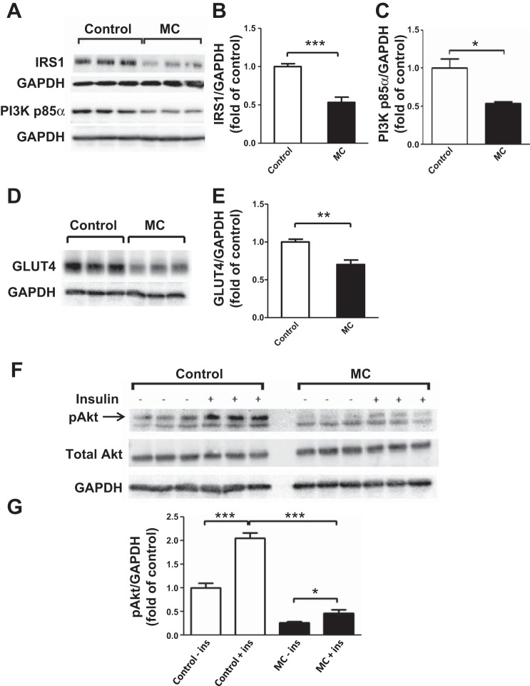 Macrophage-conditioned (MC) medium reduces protein expression of insulin signaling molecules in human adipocytes. Adipocytes (at  day 12  postdifferentiation) were treated with RPMI 1640 medium (control) or THP-1 MC medium (25%) for 24 h. Cell lysates were analyzed by Western blotting and densitometry, using antibodies to IRS-1 and PI3K p85α ( A, B, C ) and GLUT4 ( D, E ). For measuring basal and insulin-stimulated Akt phosphorylation, adipocytes were incubated with RPMI 1640 or MC medium for 24 h before being stimulated with insulin (167 nmol/l) for 5 min; Akt phosphorylation at Ser 473  (pAkt) was analyzed by Western blotting and densitometry. Total Akt and GAPDH were used as loading controls ( F, G ). Representative blots are shown; data are means ± SE ( n  = 3 per group). * P