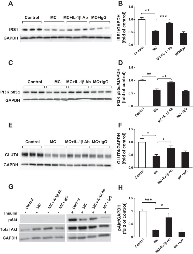 Inhibition of IL-1β activity abolishes the inhibitory effect of macrophages on protein expression of IRS-1, PI3K p85α, and GLUT4 by human adipocytes. Differentiated adipocytes were incubated with RPMI 1640 medium (control), MC medium, MC medium neutralized by IL-1β antibody (2 μg/ml), or mouse IgG (2 μg/ml, as negative control) for 24 h. Cell lysates were analyzed by Western blotting and densitometry using antibodies to IRS-1 ( A, B ), PI3K p85α ( C, D ), and GLUT4 ( E, F ). Separate groups of adipocytes were treated with various agents as above, followed by stimulation with or without insulin (167 nmol/l) for 5 min; Akt phosphorylation at Ser 473  (pAkt) was analyzed by Western blotting and densitometry. Total Akt and GAPDH were used as loading controls ( G, H ). Representative blots are shown; data are means ± SE ( n  = 3per group). * P