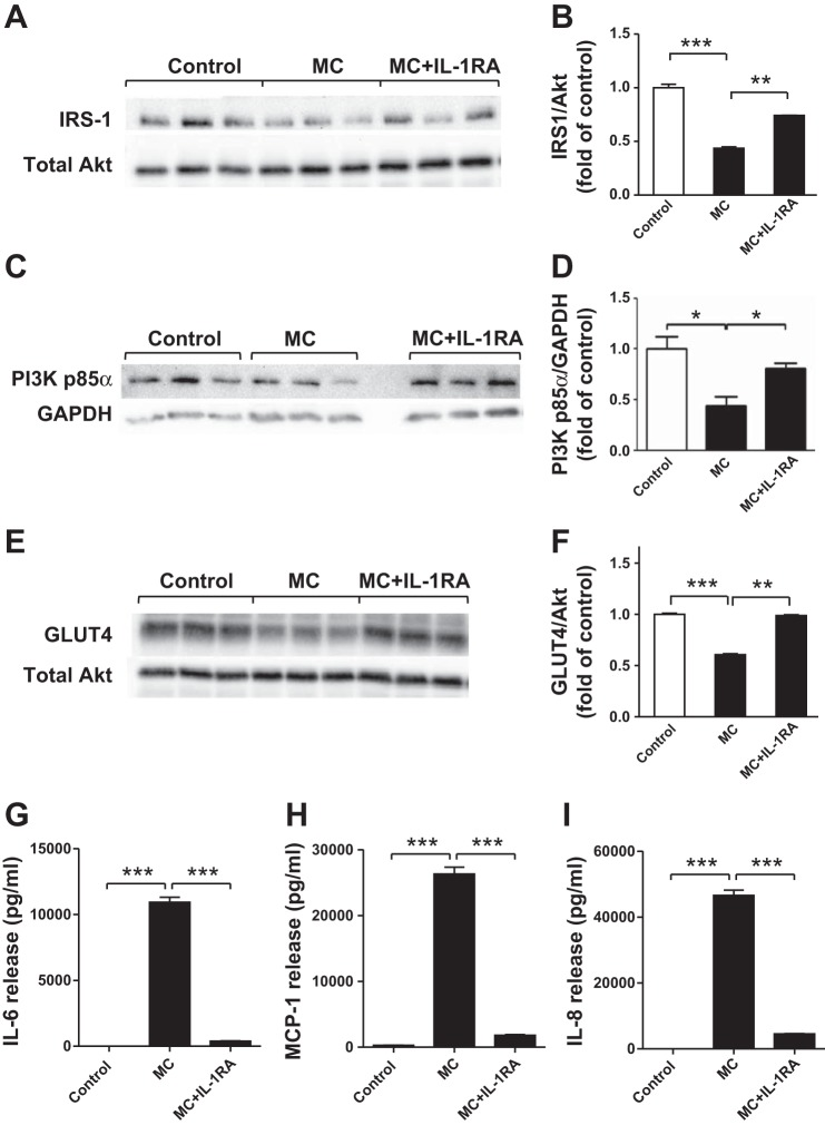 Blocking IL-1 receptor with IL-1 receptor antagonist reverses the effects of MC medium on protein expression of IRS-1, PI3K p85α, and GLUT4 and cytokine release by human adipocytes. Differentiated adipocytes were incubated with RPMI 1640 (control), MC medium, or MC medium with a recombinant IL-1 receptor antagonist (IL-1RA; 1 μg/ml) for 24 h. Cell lysates were analyzed by Western blotting and densitometry, using antibodies to IRS-1 ( A, B ), PI3K p85α ( C ,  D ), and GLUT4 ( E, F ). On the blot shown, there is an empty lane between MC and MC+IL-1RA groups ( C ). Data are expressed as means ± SE ( n  = 3 per group). * P