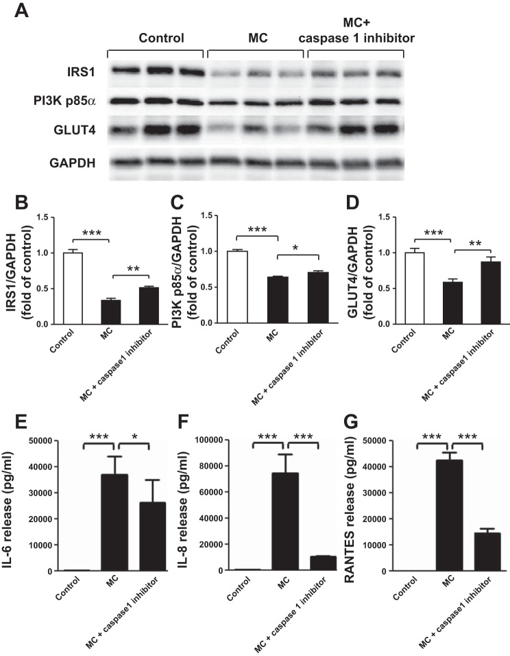 Inhibition of IL-1β production by THP-1 macrophages reduces the effect of MC medium on protein expression of IRS-1, PI3K p85α, and GLUT4 and cytokine release by adipocytes. THP-1 macrophages were incubated with RPMI 1640 (control) or caspase-1 inhibitor (50 μM) for 48 h (with freshly changed medium at 24 h), and the culture medium was collected. Differentiated adipocytes were then treated with RPMI 1640 (control), MC medium, or MC medium in the presence of caspase-1 inhibitor for 24 h. Cell lysates were analyzed by Western blotting and densitometry, using antibodies to IRS-1, PI3K p85α, and GLUT4  (A–D ). Data are expressed as means ± SE ( n  = 6 per group). Protein release of IL-6 ( E ), IL-8 ( F ), and RANTES ( G ) by adipocytes was measured by ELISAs. Data are expressed as means ± SD ( n  = 6 per group). * P
