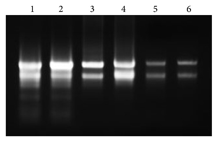 Total <t>RNA</t> integrity test on 1.0% agarose gel. Intact 28S and 18S total RNA bands can be observed on the agarose gel, indicating a good integrity of the total RNA after being extracted by different methods (lanes 1 and 2: modified CTAB method, lane 3, 4: RNAzol RT, and lane 5, 6: <t>RNeasy</t> Plant Mini kit).