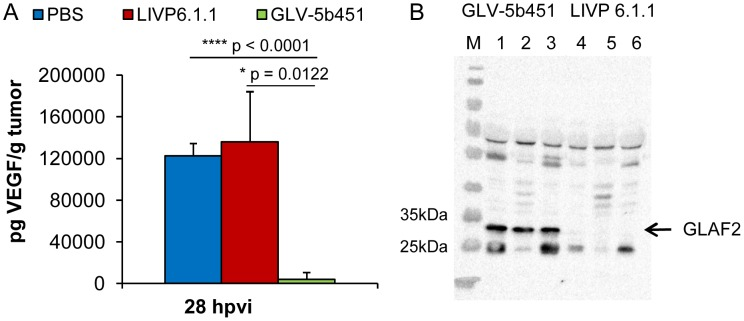 Presence of the scAb GLAF-2 and <t>VEGF</t> in tumors of LIVP 6.1.1- or GLV-5b451- injected DT09/06 xenograft mice. ( A ) Western blot analysis of DT09/06 tumor xenografts injected with LIVP 6.1.1 or GLV-5b451 virus (n = 3). The presence of GLAF-2 proteins was performed as described before. Each sample represents an equivalent of 2 mg tumor mass. ( B ) Levels of functional VEGF in tumor lysates determined by <t>ELISA.</t> The graph was plotted using the mean values of each group of three independent measurements. The data are presented as mean values +/− SD. An unpaired t-test was performed revealing significant differences (****P