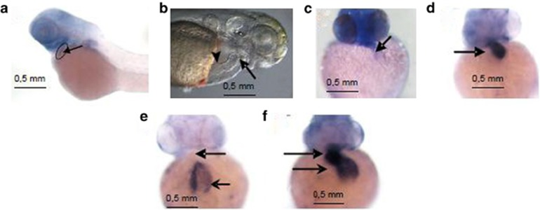 The in situ hybridization of Fam40b in the zebrafish heart as well as the expression of vmhc and of cardiac cmlc2 in control and Fam40b knockdown animals. ( a ) Digoxigenin-labeled RNA probes were prepared using RNA labeling kit and stained using BM purple. ( b ) The position of the atrium (arrowhead) and the ventricle (arrow) that was not beating after knockdown of Fam40b is shown. ( c ) Expression of vmhc in Fam40b knockdown animals was significantly impaired as compared with control animals ( d ) (arrows show the ventricles). Expression of cmlc2 in Fam40b knockdown animals was almost absent in ventricles and impaired in the atria ( e ) as compared with control ( f ) (upper arrows indicate ventricles and lower arrows indicate atria; one representative experiment out of five independent). Whole mount embryos were imaged on a Leica stereomicroscope fitted with a Zeiss <t>Axiocam</t> color camera