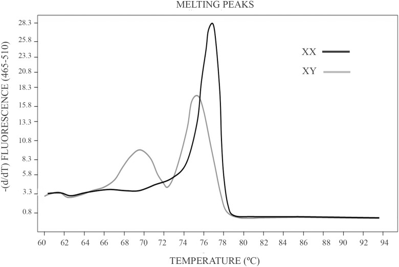 Melting temperature curve profiles produced by male and female samples in a HRM analysis. HRM analysis starts with a PCR amplification of the amelogenin gen. The amplification is in the presence of EvaGreen a saturating dye which presents high fluorescence when bound to dsDNA. Amplification is followed by a High Resolution Melting analysis (HRM) in the LightCycler 480 Real-Time PCR Instrument (Roche Applied Science). A dissociation curve analysis displays the different melting temperature of products from the X and Y chromosome.