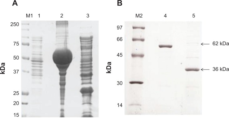 <t>SDS-PAGE</t> ( A ) showing non-induced control (lane 1), expressed protein in pellet (lane 2), and supernatant/soluble fraction (lanes 3); SDS-PAGE ( B ) for purified GST-BmLDH protein (lanes 4) and PreScission ™ Protease cleaved BmLDH (lane 5).