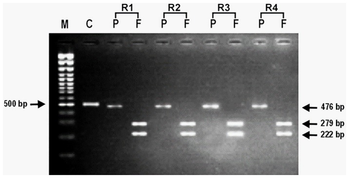 Representative photomicrograph showing the results of RFLP after digestion of PCR amplified product with endonucleases, Apo1 and AfI III for Pfmdr1 gene (86Y) in chloroquine resistant Plasmodium falciparum isolates. In photograph, (M) is 100 bp DNA ladder; (C) is undigested product as control; (P) is Apo1; (F) is Afl III and (R1- R4) are chloroquine resistant P. falciparum isolates.