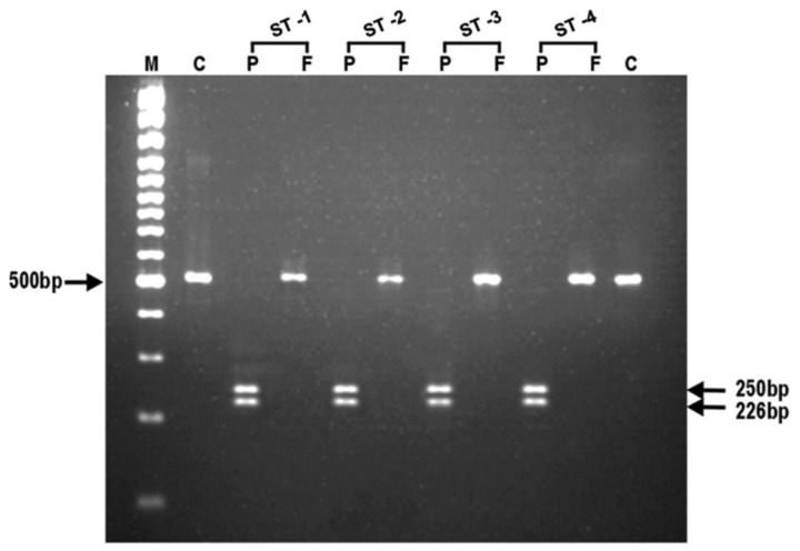 Representative photomicrograph showing the results of RFLP after digestion of PCR amplified product with endonucleases, Apo1 and AfI III for Pfmdr1 gene (N86) in chloroquine sensitive Plasmodium falciparum isolates. In photograph, (M) is 100 bp DNA ladder; (C) is undigested product as control; (P) is Apo1; (F) is Afl III and (ST1-ST4) are chloroquine sensitive P. falciparum isolates.